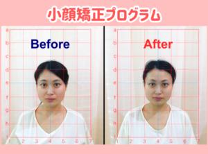 小顔矯正プログラム